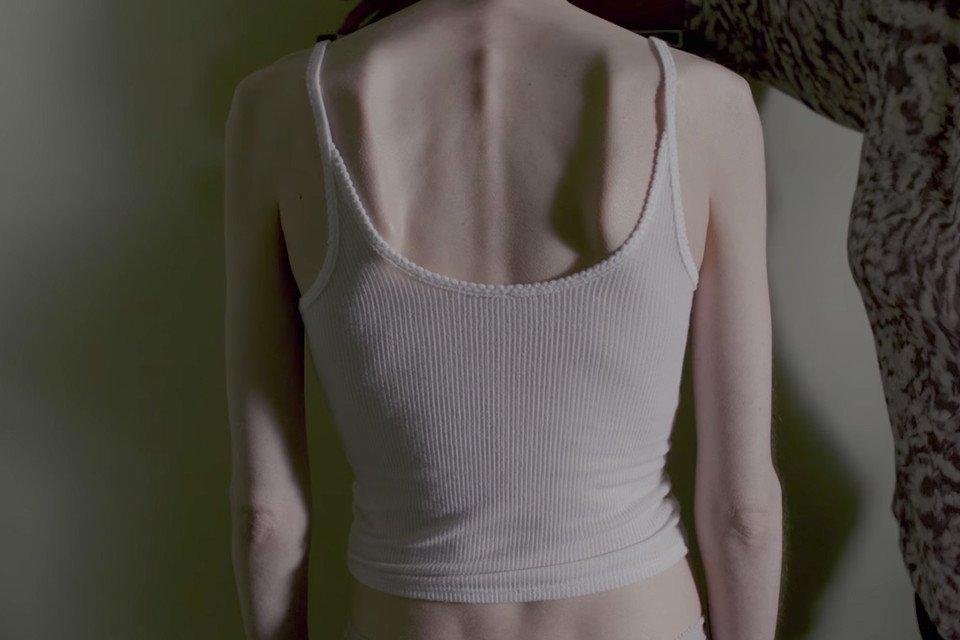 Фильм о похудении анорексии