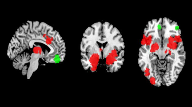 Anxiety is visible on images of the brain http://www.uu.se/en/news-media/news/article/?id=12658&area=2,4,6,10,16,24,25,40,44&typ=artikel&lang=en…