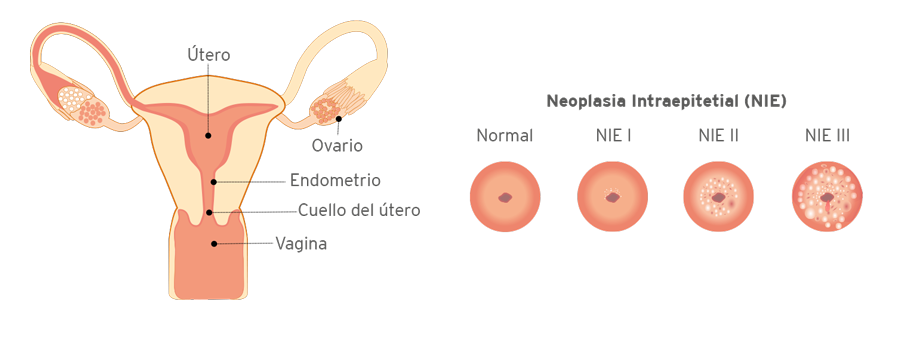 tumor en el utero maligno
