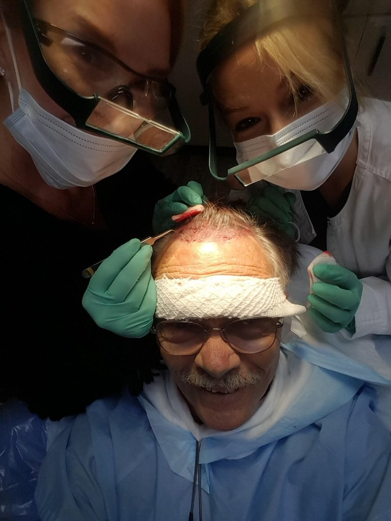 Out of office and get this selfie from a patient mid #hairtransplant. I love my patients. #cosmeticsurgey https://t.co/Q6P7KcvvSU