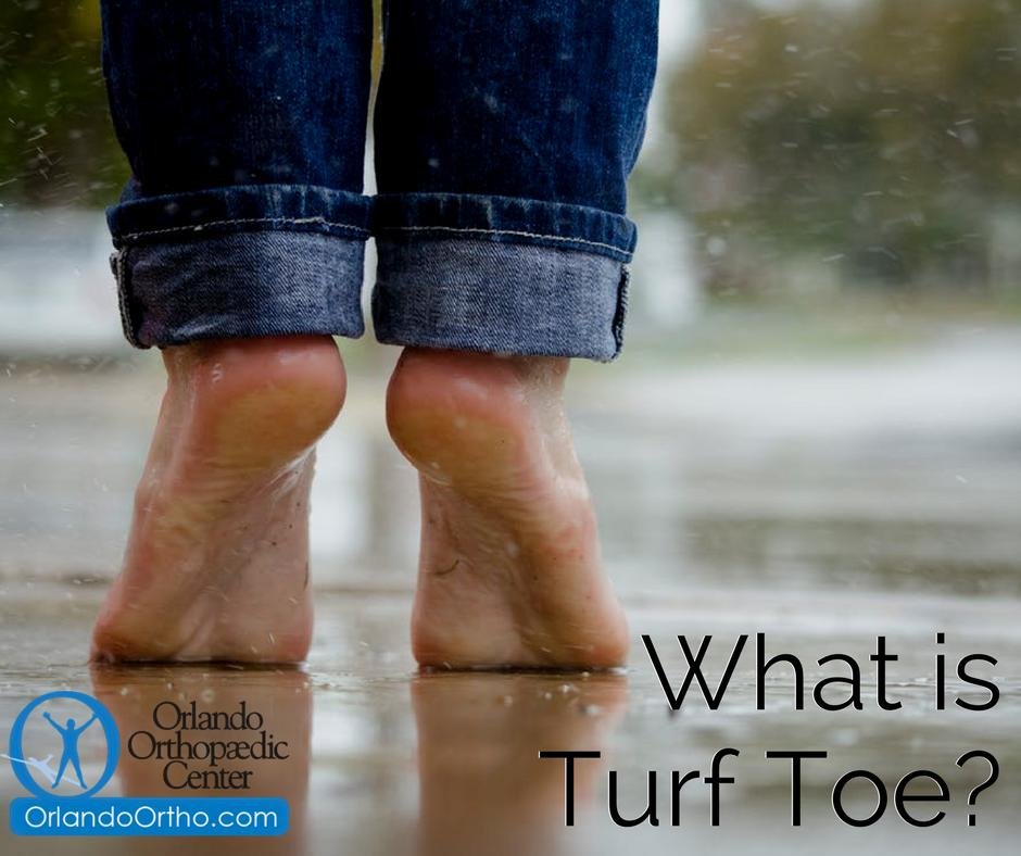 Have you been experiencing severe pain around the big toe joint? Dr. Reuss may be able to explain why: https://www.orlandoortho.com/what-is-turf-toe/…