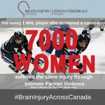 Image for the Tweet beginning: Concussions do not just happen