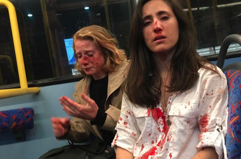 Ryanair stewardess and girlfriend 'beaten on bus by thugs who told them to kiss' https://www.mirror.co.uk/news/uk-news/ryanair-stewardess-girlfriend-beaten-bus-16390675?utm_source=twitter.com&utm_medium=social&utm_campaign=sharebar …
