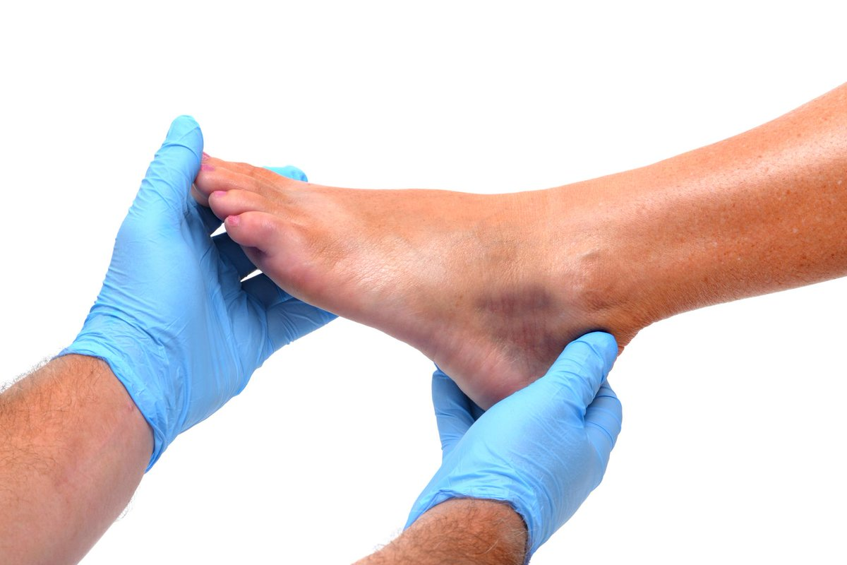 Regular foot checks and proper #footcare is pivotal in keeping potential foot and ankle problems away. If you notice any problem, you need to consult a #podiatrist immediately to fight off any potential #infections.