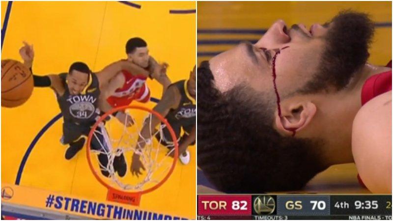 【影片】太恐怖!范喬丹遭肘擊眼角一行血直流下,牙都掉出來啦!
