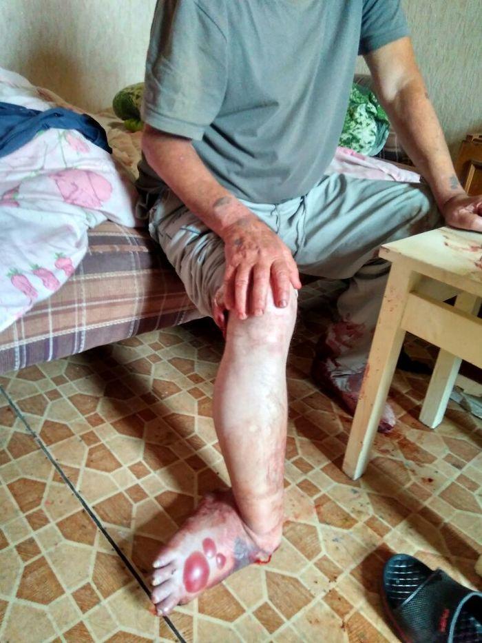 Картинки отрубленные ноги