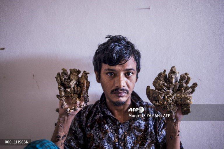 🇧🇩 Bangladesh 'Tree Man' wants hands amputated to relieve pain #AFP http://u.afp.com/JmQo📸@uz_munir
