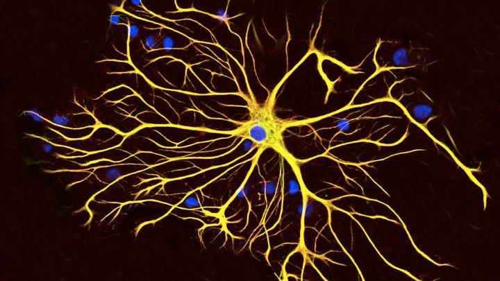Glial cells are your brain's loving caretakers—until you deny them sleep: http://bit.ly/2X4JogO