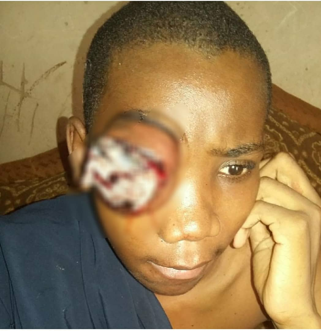 Mustapha is suffering from eye dislocation as a result of hitting him on the eye by someone. Makkah Hospital located at Kano demanded three hundred thousand for removing the eye and transplanting of a plastic one. donate Through: 0098631815 diamond bank, Fauziyya Danladi. <br>http://pic.twitter.com/TvNllSfTpi
