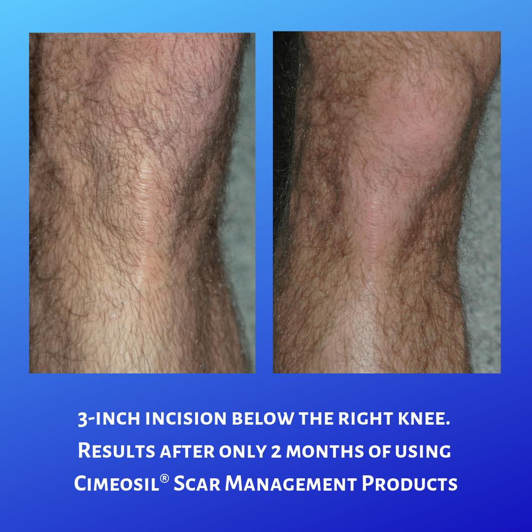 Here is an example of what can happen when you use Cimeosil® Scar Management Products!  #cimeosil #scarandlasergel #gelsheeting #silicone #flatten #fade #hypertrophic #keloid #scarmanagement #question #answer #surgery #trauma #accident #plasticsurgery #plasticsurgeon #surgeon