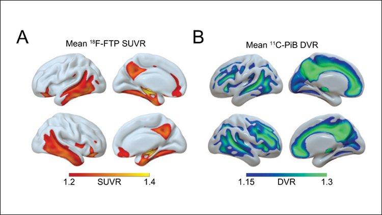 #JNeurosci: #Sleep predicts accumulation of #Alzheimer's pathology #tau & #β-amyloid in human #aging @joe__winer @sleepdiplomat @UCIrvineSOM @UCBerkeleyNeuro @DZNE_de @NIH https://bit.ly/2INmtwB