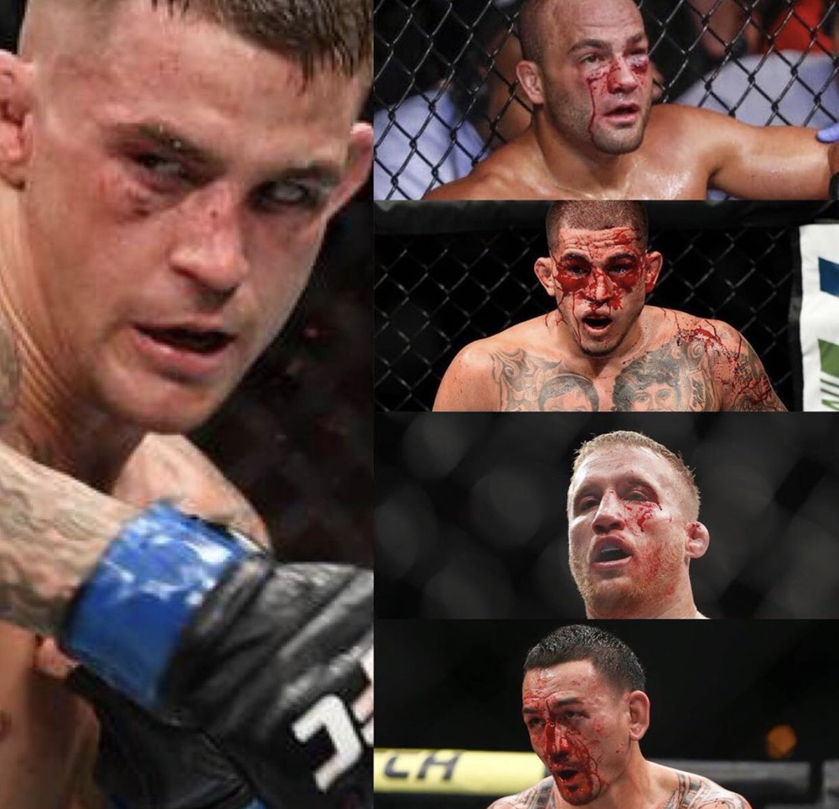 @DustinPoirier is a bad man.  This is what he does to people! These are his last 4 opponents, beat them all up badly!  Will he do the same to Khabib in September?  Comment below if he does the same to Khabib ⬇️.  #UFC #MMA #DustinPoirier #Khabib @mikebrownmma