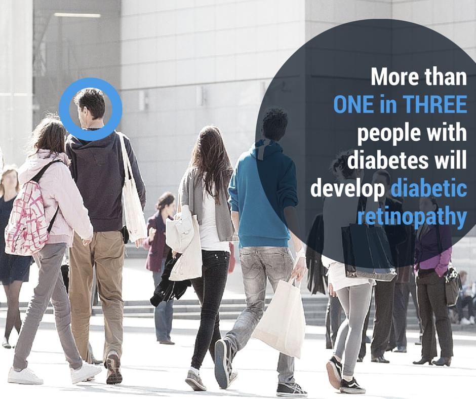 test Twitter Media - Diabetic eye complications affect over one third of all people with #diabetes. Keeping your condition in control goes a long way to ensuring your eyes stay healthy. Learn more https://t.co/IvGIsVl2hw https://t.co/G06K6CXkOq