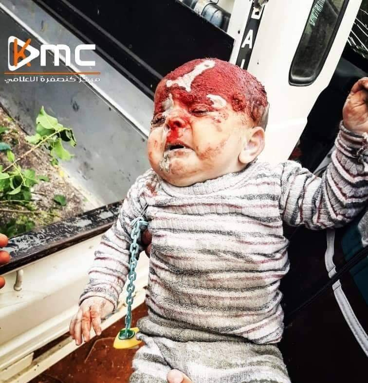 Is this baby a terrorist? Injured today due to bombing  on #Kansafra village in #Idlib rural. #Syria #Rise4Idlib
