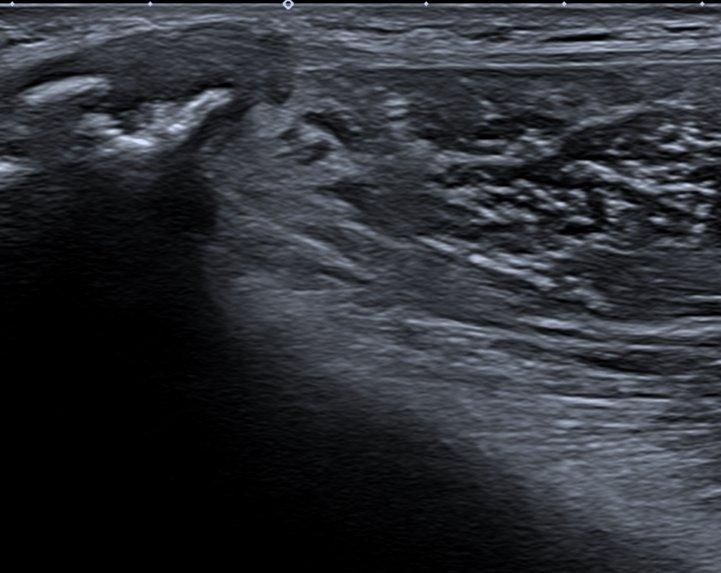 tensor fascia lata tendinopathy ultrasound