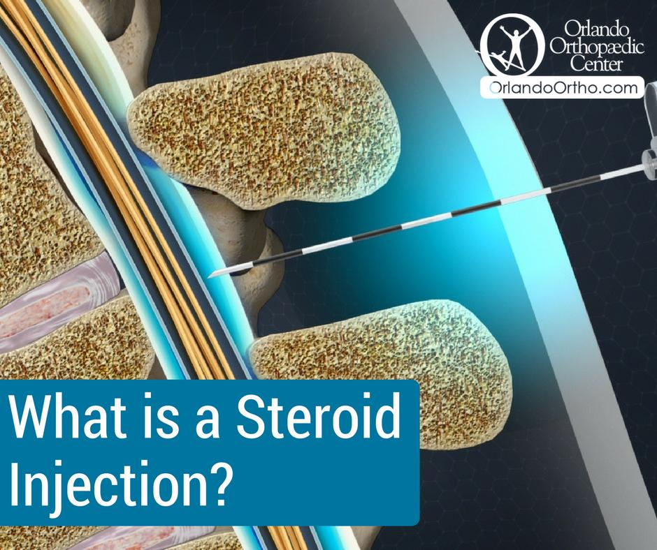 Discover more about steroid injections here: https://www.orlandoortho.com/what-is-a-steroid-injection/…