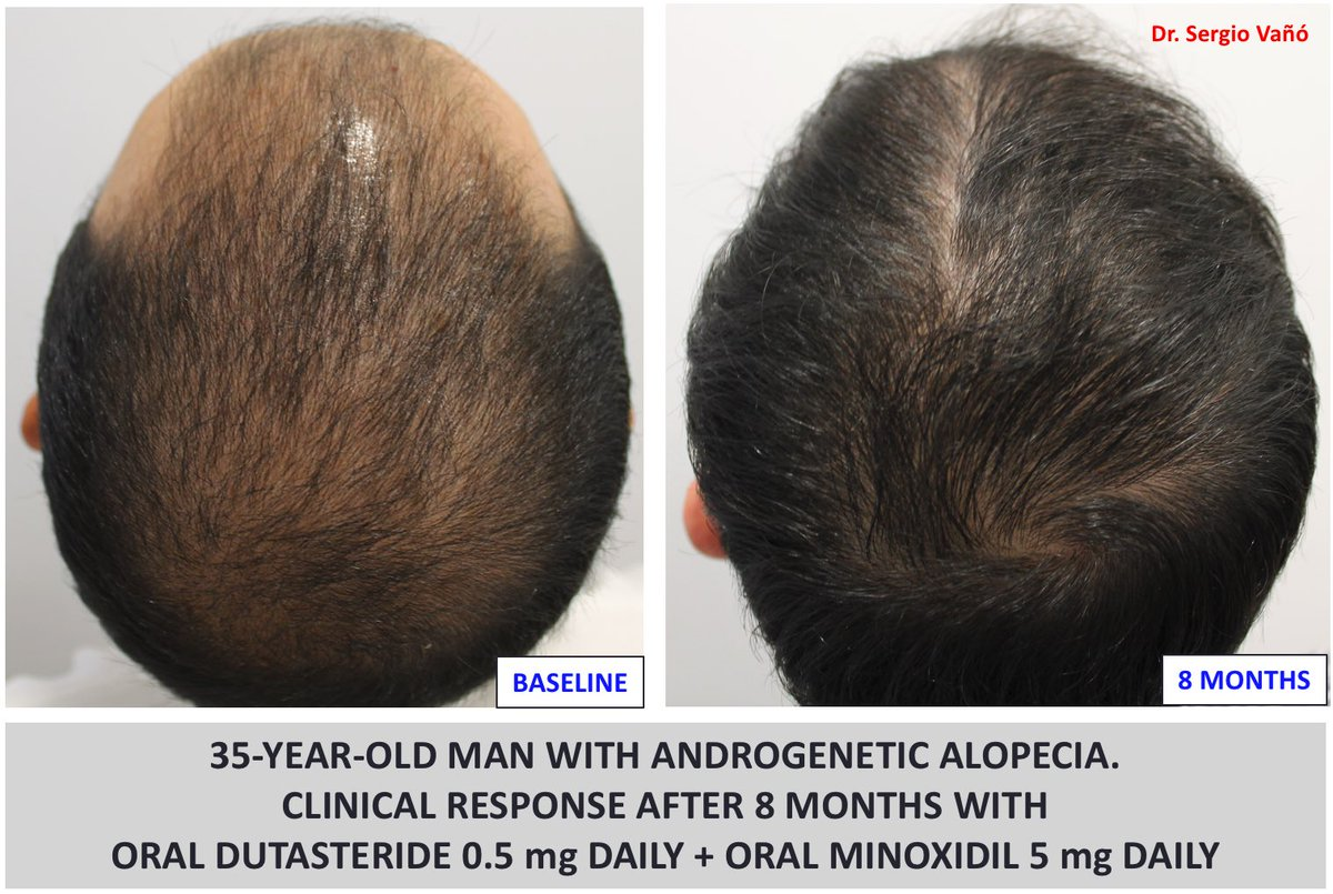 Dr Sergio Vano On Twitter In Men With Androgeneticalopecia The Combination Of Oral Dutasteride Oral Minoxidil Is A Very Effective And Well Tolerated Therapy The Compliance Is Very High