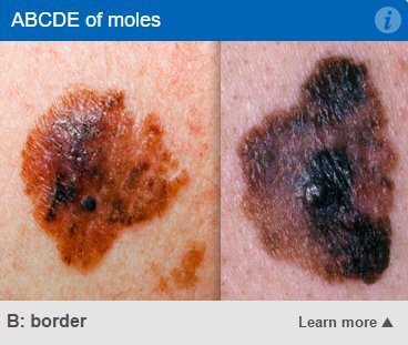 Most moles are completely harmless, in rare cases they develop into melanoma. Our tool can help you know the signs: https://t.co/3hOLAciEkM