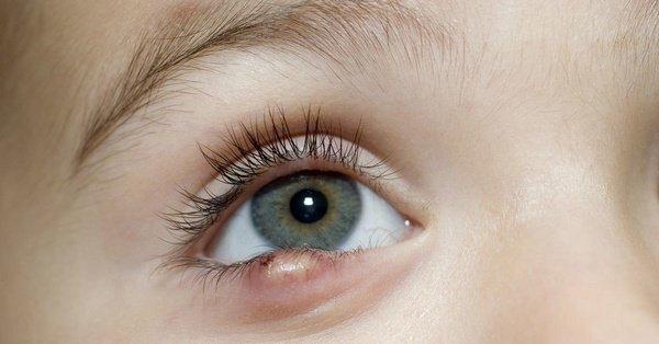 кожные заболевания лишай фото и описание