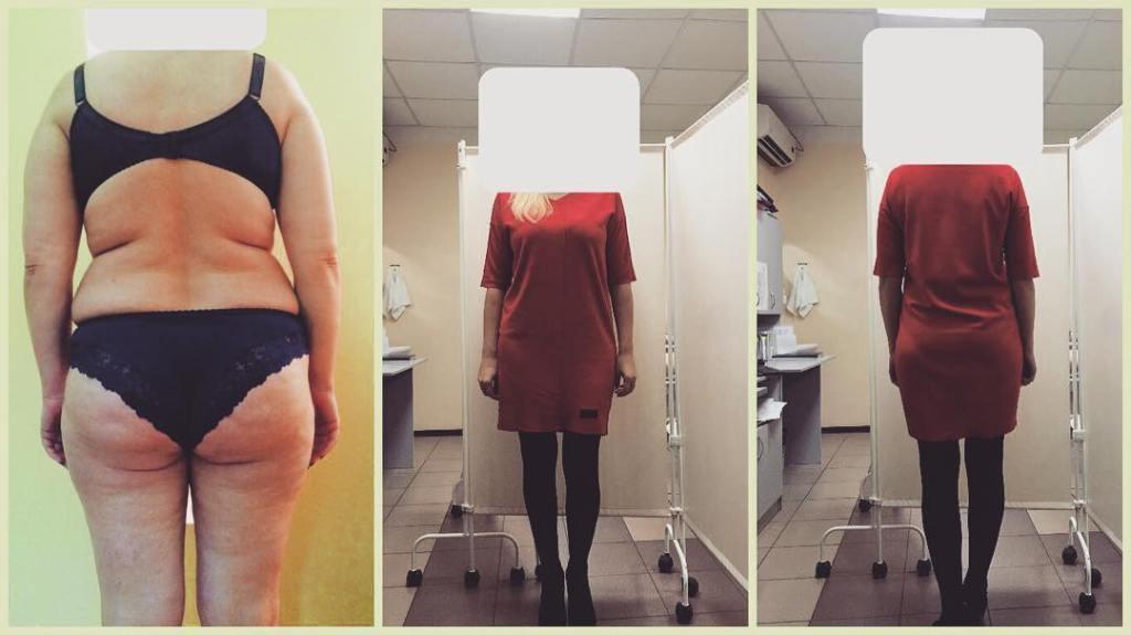 Методы Кардинального Похудения. Сравнительный обзор самых эффективных методов похудения