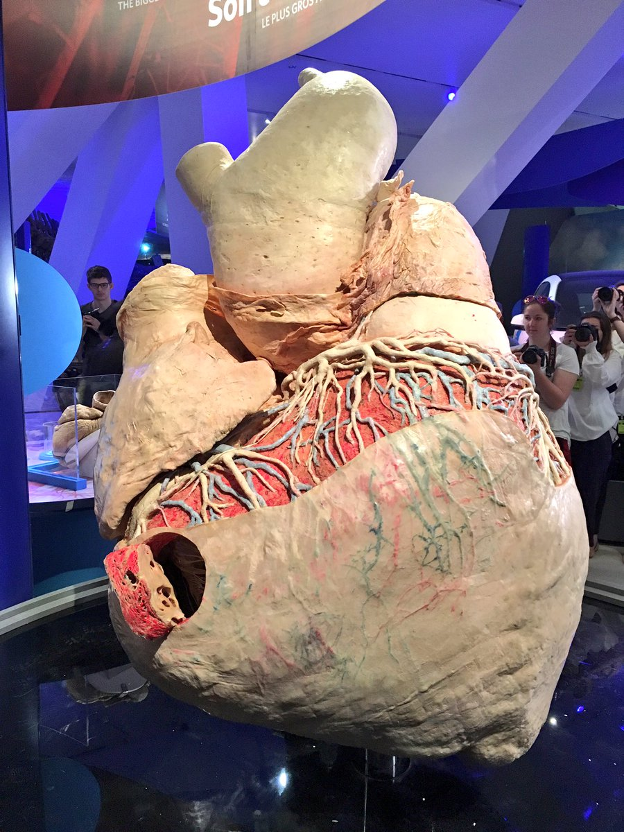 This is the first & only preserved Blue Whale heart in the world. #ROMBlueWhale