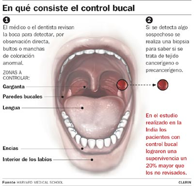 cancer la bucal)