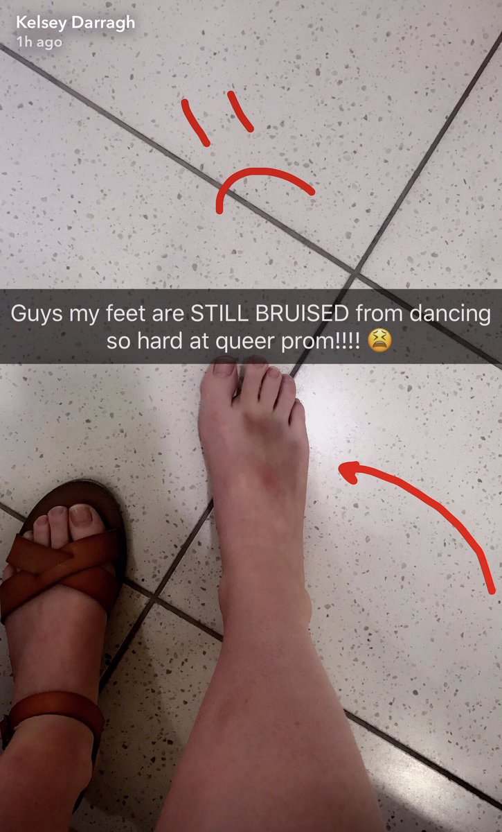 Foot fetish snap