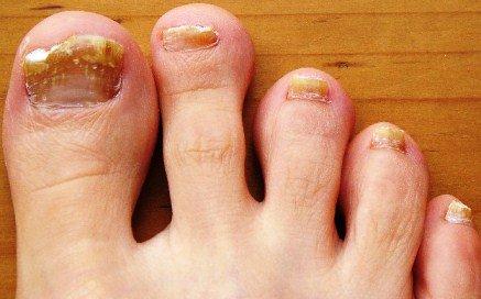 От грибка ногтей народные рецепты