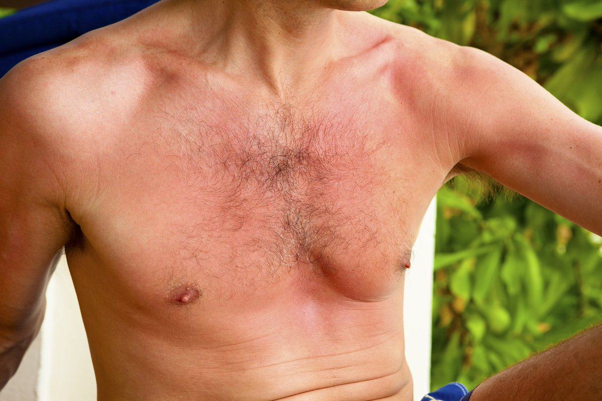 Did the warm weather catch you by surprise this week? Here are some tips on treating sunburn https://t.co/4Zcr14Tw59