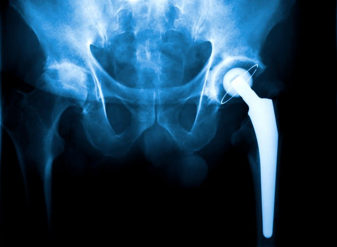 If you've had artificial hip replacement surgery, learn how the recent #Stryker recall and lawsuits may affect you &gt;  https:// goo.gl/dWAhQv  &nbsp;  <br>http://pic.twitter.com/LLaB9zyFvG