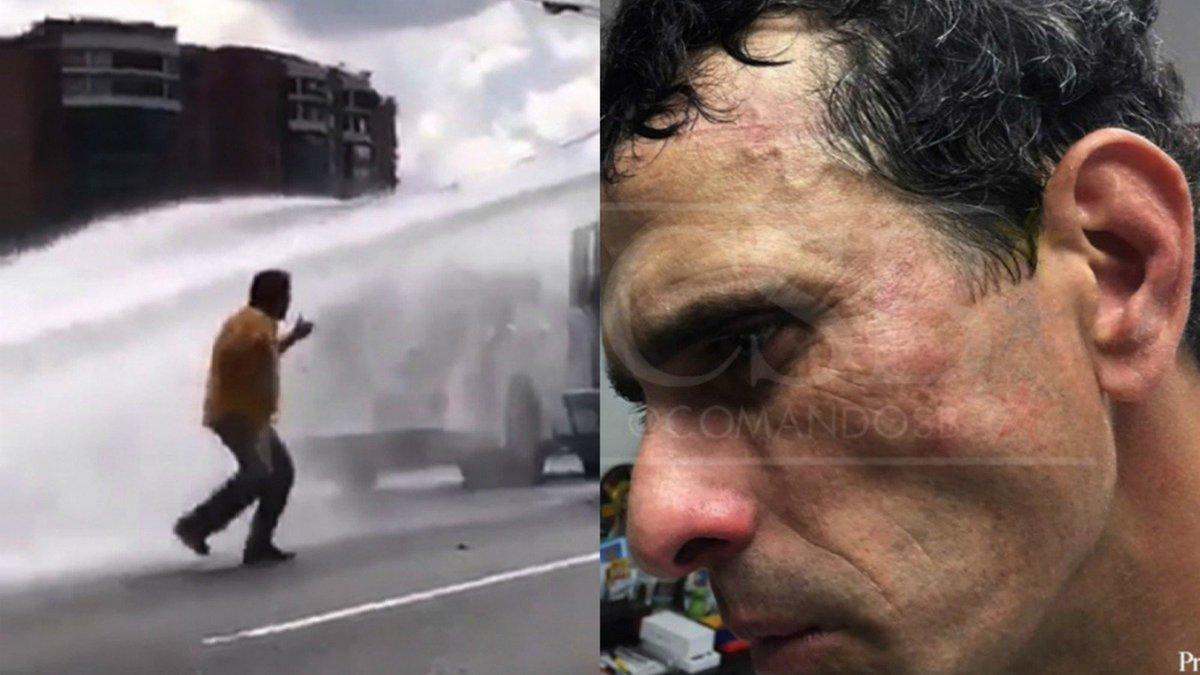 Capriles y el diputado Paparoni, heridos en Venezuela https://t.co/s0LJB2zhRG