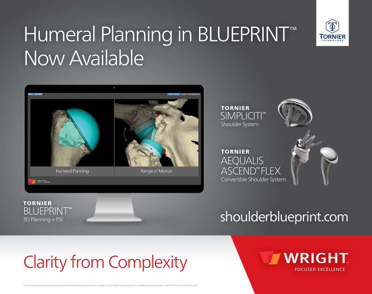 Wright medical on twitter demo blueprint 3d planning psi at wright medical on twitter demo blueprint 3d planning psi at the san diego shoulder course june 14 17 2017 malvernweather Gallery