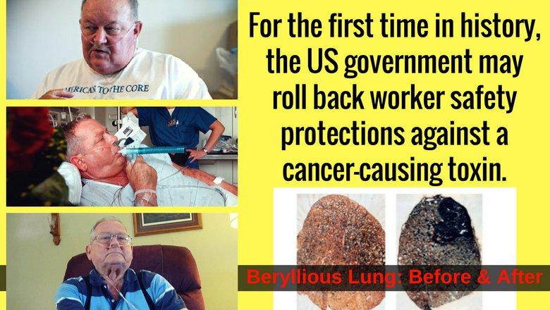 Beryllium-rule rollback will literally kill American workers (see chronic beryllium disease):  http:// bit.ly/2rEu2fa  &nbsp;   #WednesdayWisdom #1u<br>http://pic.twitter.com/r4lORsBfPN