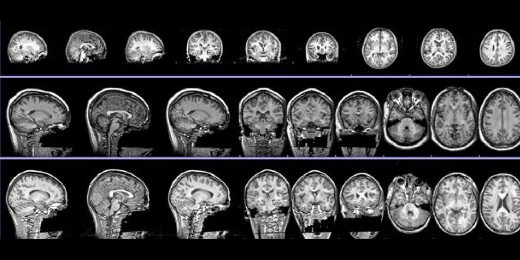 How to enhance the #reproducibility of #neuroimaging publications  https:// f1000research.com/articles/6-124 /v2 &nbsp; … <br>http://pic.twitter.com/qavLC6dQgo