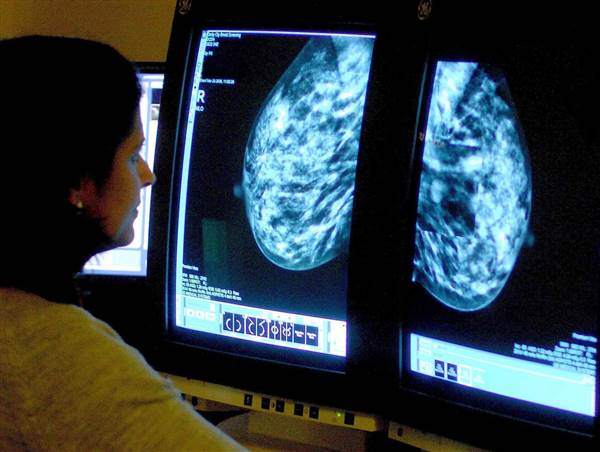 Study—longer follow-up time for asian-american women after abnormal #mammogram via @nbcnews  https://t.co/VhUkrRy9w7