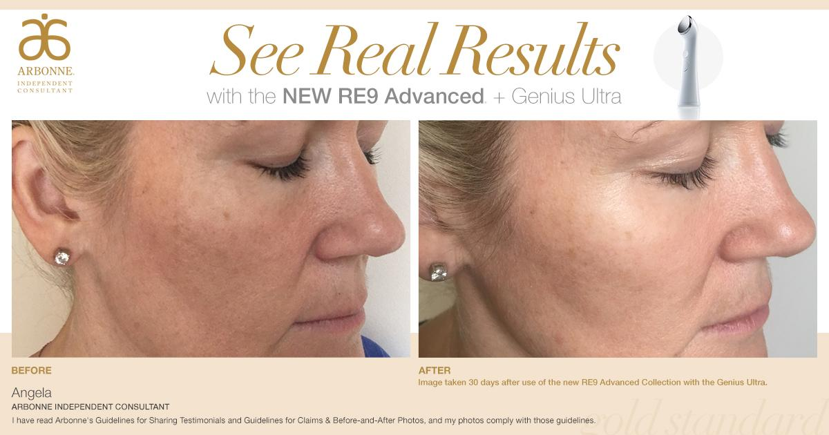 Arbonne On Twitter Her Glowing Skin Speaks For Itself Have You