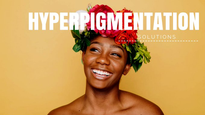 Got Hyperpigmentation? Here's How To Destroy It