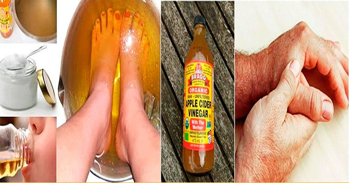 How to Treat Arthritis and Joint Pain Naturally with Apple Cider Vinegar