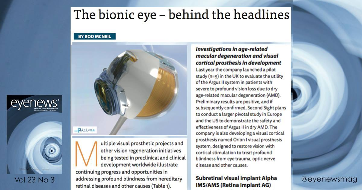 Factors to consider when selecting an appropriate #bioniceye #implant  http:// ow.ly/RMPX30cyhHg  &nbsp;   #Ophthalmology #eyecare <br>http://pic.twitter.com/vVspVhmgUB