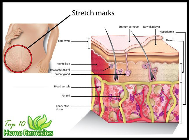 #OtvTIPS: See Easy #DIY Tips to Get Rid of Stretch Marks