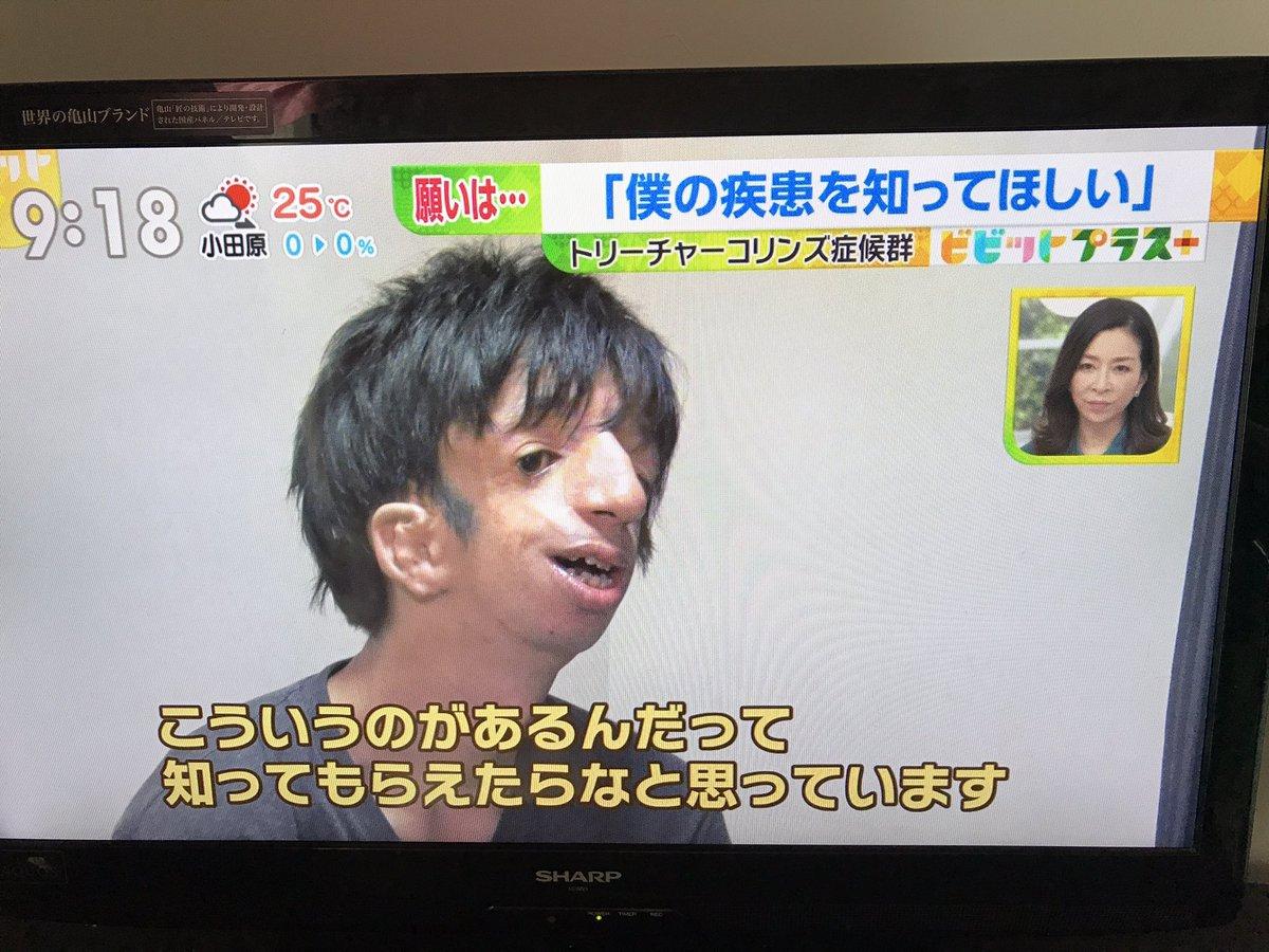 チャー 症候群 トリー コリンズ 顔ニモマケズ、僕は生きる 内面好きと言ってくれた彼女:朝日新聞デジタル
