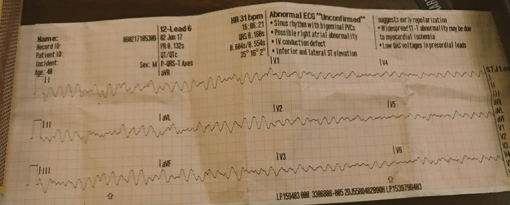 """RT @jackgkennedy: @EM_RESUS What about this?!?! """"Sinus Rhythm with PVC's""""..."""