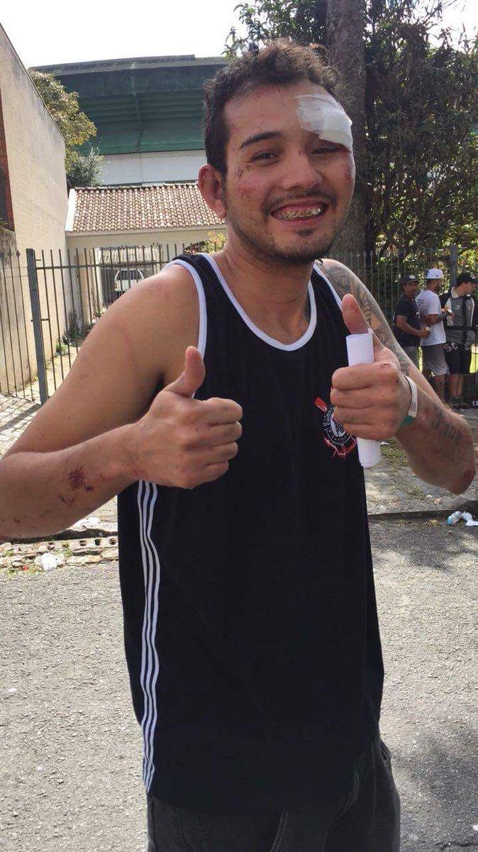 Foi espancado  Morreu Noticiaram para o Brasil sua morte  Viveu Ficou em estado grave Recebeu alta Tirou foto fazendo joia Voltou pra SP