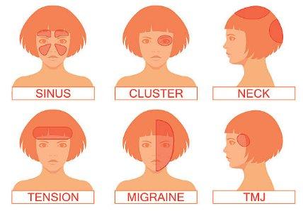 Dolor de cabeza es más común en mujeres