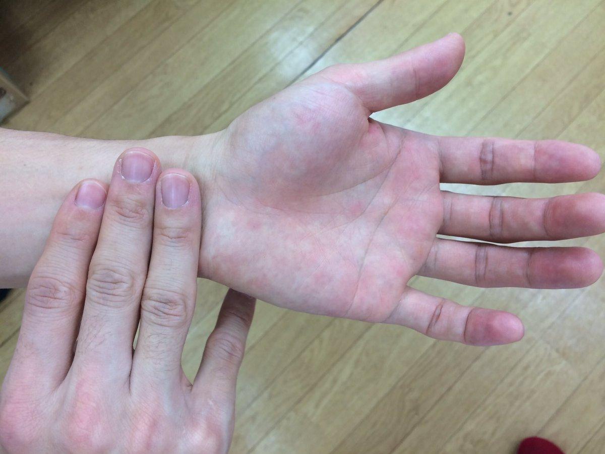 気圧の低下で頭痛、めまい、倦怠感、肩こり、イライラ、喘息、神経痛などツラい!すぐ楽になりたい方は『内関』のツボがオススメ✳︎ 内関は手首のシワから指3本分下、2本の筋の間にあります。 少し強めに5秒(ゆっくり押し込む)、5秒(離す)で押しましょう♪ 少し強めに7回程押しましょう!