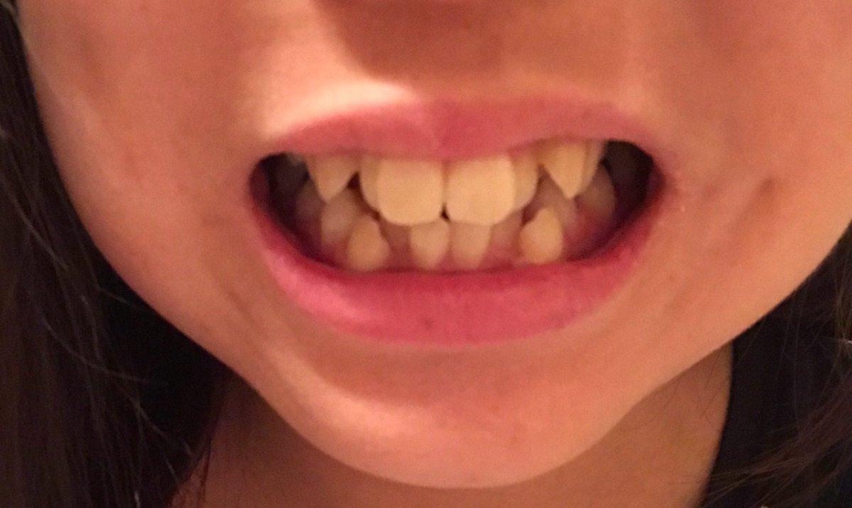 キス 矯正 歯 列