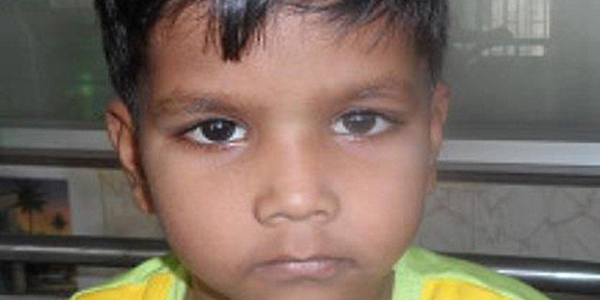 Langzeitarzt Tobias Vogt über das Schicksal des kleinen Israil, der in #Indien eine baldige Herzoperation benötigt: https://t.co/Cxzd9a3hnN https://t.co/2bWb17Ky9A