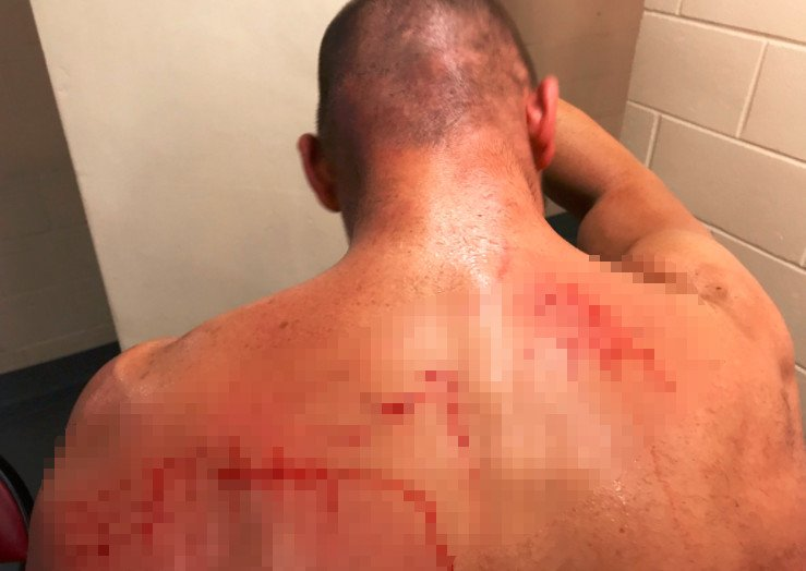 Frankie Kazarian's back is tore up after his strap match at ROH Best i...