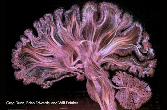 Watch the human brain come to life in this stunning piece of art https...