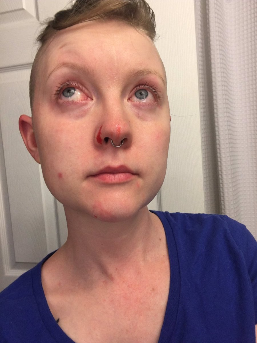 ehlers-danlos skin is so fragile. this is what happens from washing my face with a washcloth #eds #EhlersDanlosSyndrome <br>http://pic.twitter.com/T2CEur51bJ